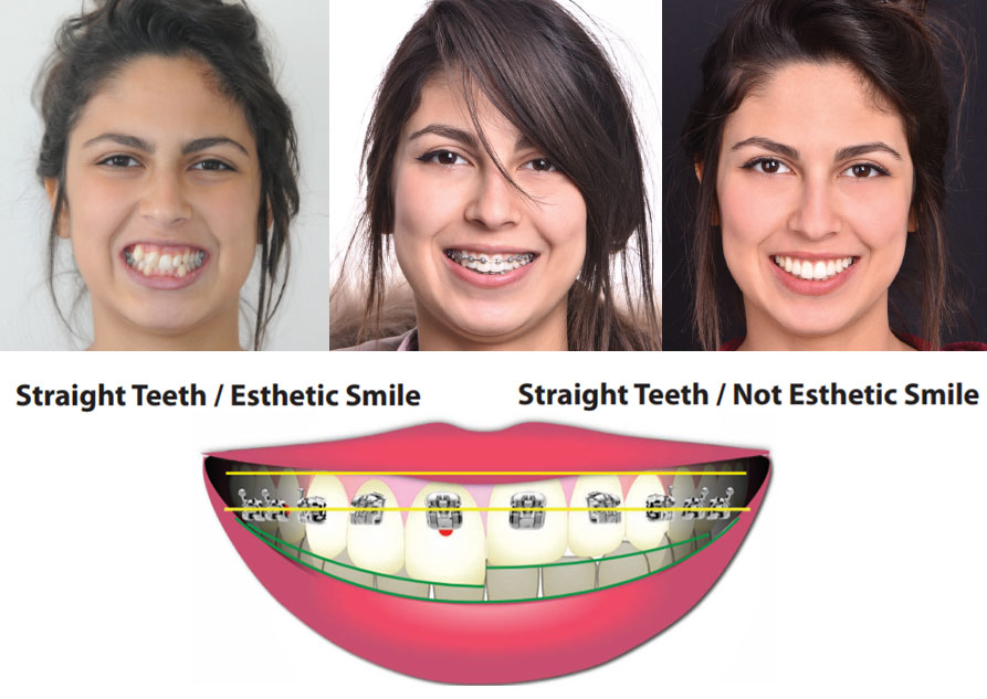 Photo collage shows the difference between Pitts 21 and traditional braces.  The top row shows 3 young women smiling and how the Pitts 21 allows more of the smile to show.  The second row image shows how the Pitts 21 brace is placed higher on the tooth than a traditional brace.